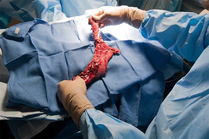 Esophagectomy requires the removal of almost the entire esophagus as well as a portion of the stomach. This operation requires access to both the chest as well as the abdomen. The esophagus and stomach pictured above were removed with a minimally invasive approach using laparoscopy to address the dissection in the stomach and thoracoscopy to perform the dissection in the chest as well as reconstructing the connection, a process known as an anastomosis.