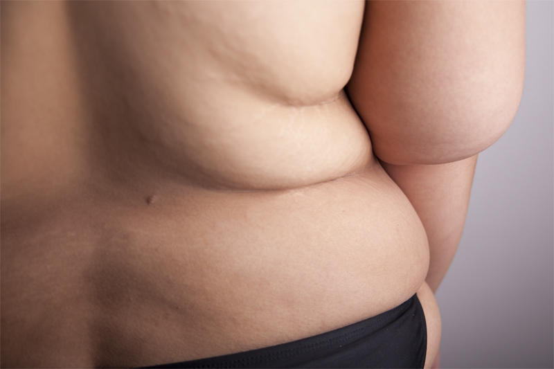 Your body will not magically bounce back to the way it was ten or twenty years ago before you may have started to suffer from morbid obesity. Some amount of excess skin is always expected after surgery-especially if you lose more than one hundred pounds after the operation. Remember, bariatric surgery is meant to alleviate obesity related comorbid conditions and is not cosmetic.