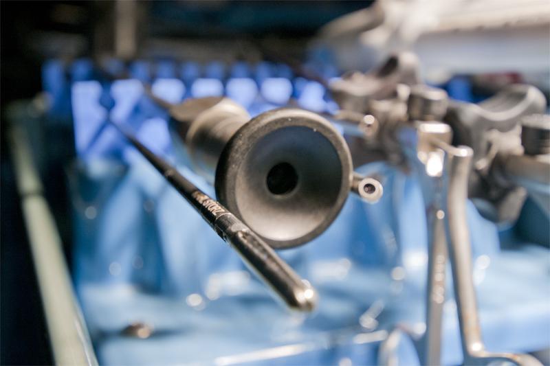 El adaptador circular negro muestra donde está alojada la cámara de vídeo al laparoscopio. Justo a la derecha se puede ver un ángulo de la punta con un alcance de 5 mm. El ámbito laparoscópico abarca en la actualidad una amplia variedad de diferentes tecnologías. En su forma más simple, puede ser considerado como simples tubos largos con un sistema de lentes que permiten la inserción de una cámara y una fuente de luz