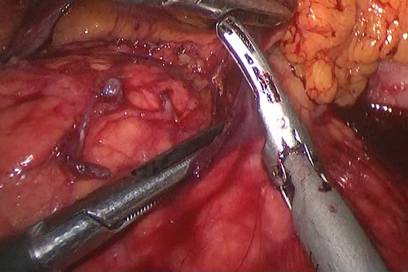 Minimally invasive techniques are being increasingly applied to pancreatic resection for malignancy. Factors that help determine the resectability of the tumor include its location in the pancreas as well as its relationship to the surrounding blood vessels and organs. This image demonstrates some of the surrounding tissue between the pancreas and the stomach being dissected in the early stages of an operation.