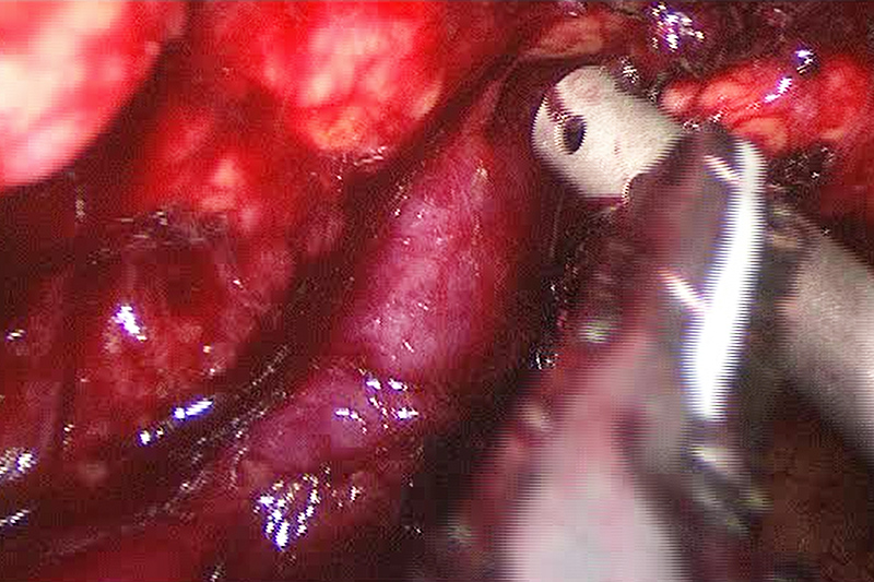 Laparoscopic distal pancreatectomy can be performed from either the body of the pancreas towards the tail or the tail towards moving backwards towards the middle of the pancreas. Usually, the dissection requires a combination of these approaches along with a number of other technical maneuvers. The image above demonstrates the splenic vein that was identified and followed from the body of the pancreas moving outward.