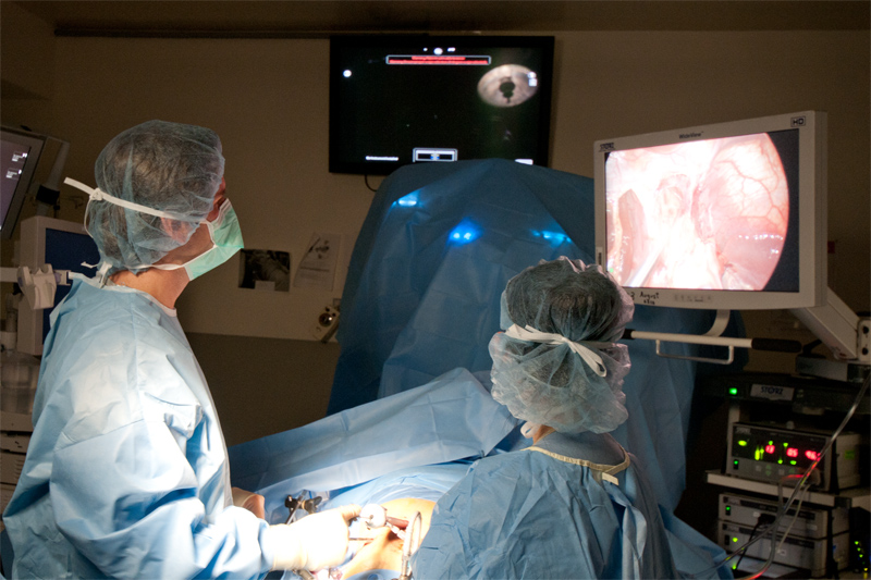 The operation to open up the muscle fibers of the lower esophagus are best served with a combination of a laparoscopic and robotic approach. The stomach needs to be mobilized and the area around the esophagus freed from attaching tissue. The robot can then be used to finely divide the layers of the muscle fibers over the mucosa ensuring that the most complete myotomy possible is performed.