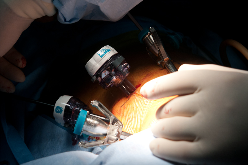 Planning a minimally invasive operation involves an understanding of the steps of the operation and the progression of the different technologies and devices involved. Combined robotic and laparoscopic or thoracic cases require that dissection can start with one technology and allow resection with another. Often times it is necessary to switch camera angles, points of view and a variety of other tools as the operation proceeds. Trocars serve as the gateways that allow minimally invasive instruments to pass.