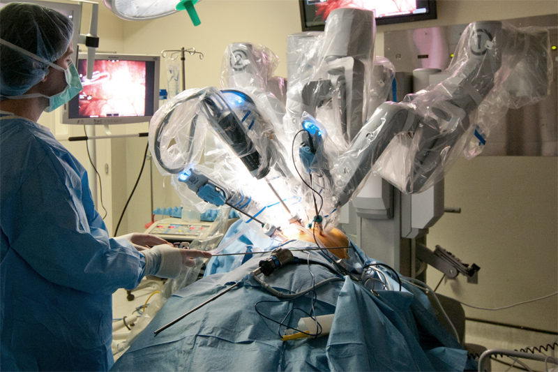 Advanced robotic cases may sometimes use a variety of different scopes and machine systems in order to facilitate visualization during portions of the operation. In some cases a laparoscope may be used at the same time as the robot to allow visualization from a different perspective so that structures can be identified with two viewpoints. A third scope, an endoscope, may be used to provide a perspective from inside the intestines or bronchi.