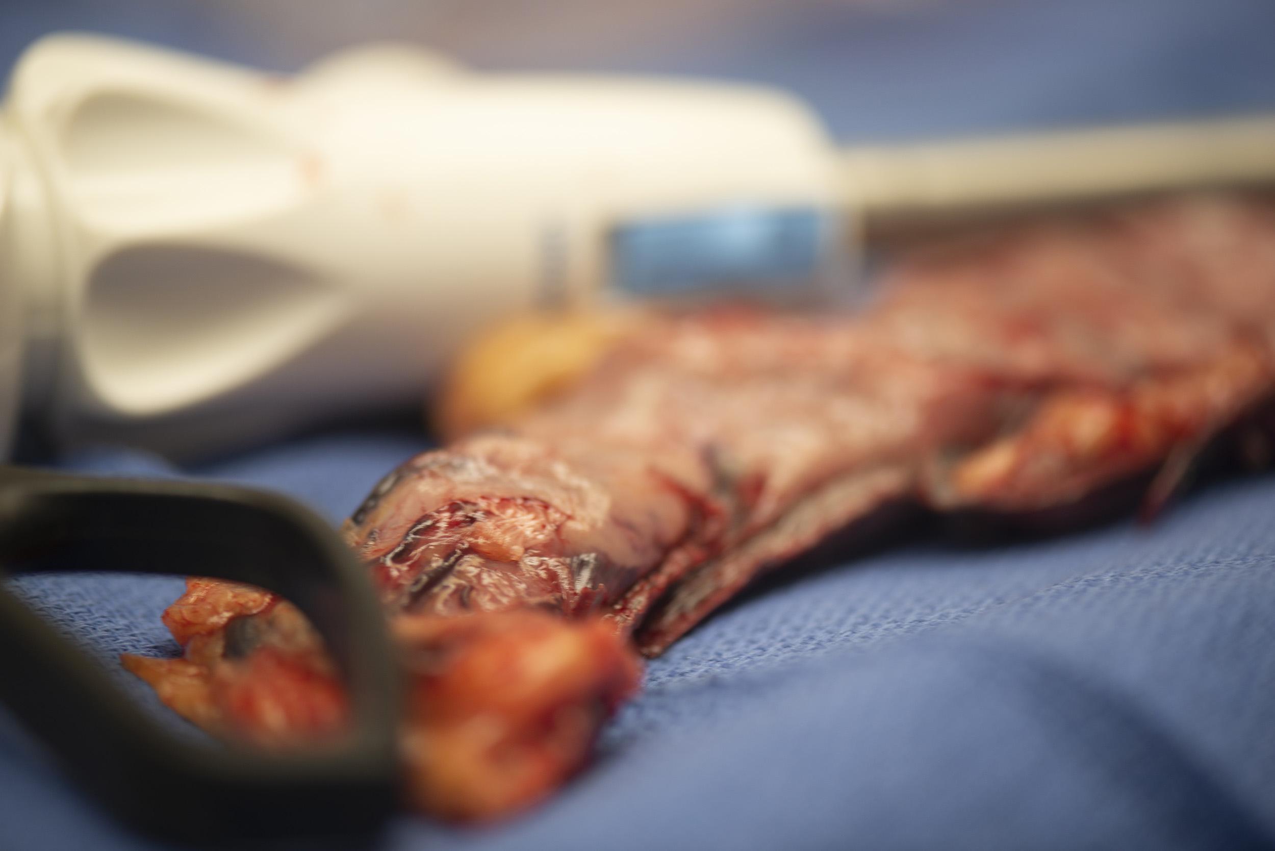Grapadora con restos gástricos eliminados durante la gastrectomía en manga