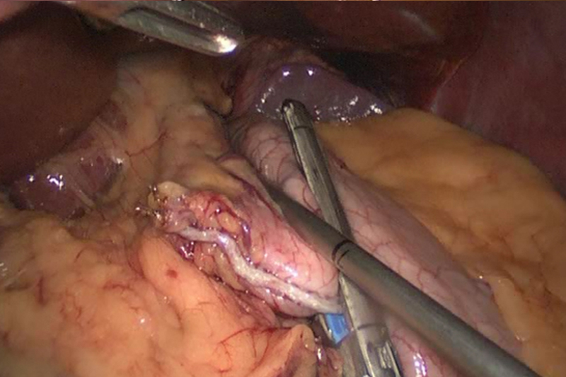 The stomach is divided into two parts during a laparoscopic gastric bypass. The pouch is shown being created. The surrounding connections of the stomach are opened. A sizing device is placed and then a small gastric pouch is stapled.