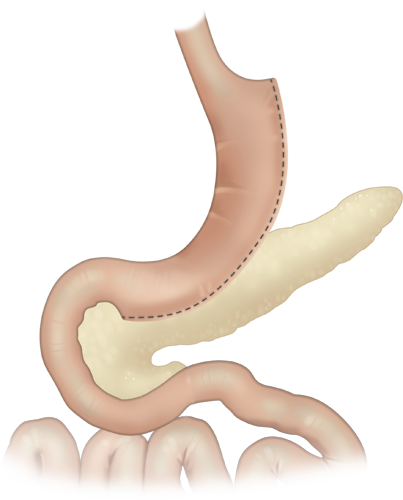 Ilustración de la manga gástrica laparoscópica