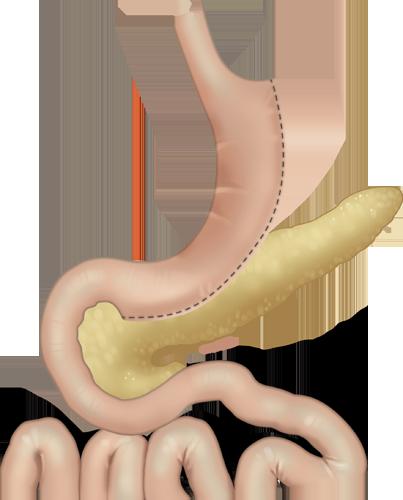 Illustration of the laparoscopic gastric sleeve